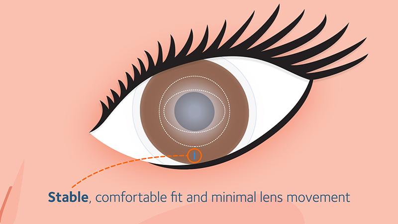 Optimized Toric Lens Geometry™